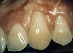 gums before gum grafting