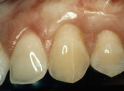 After gum grafting procedure